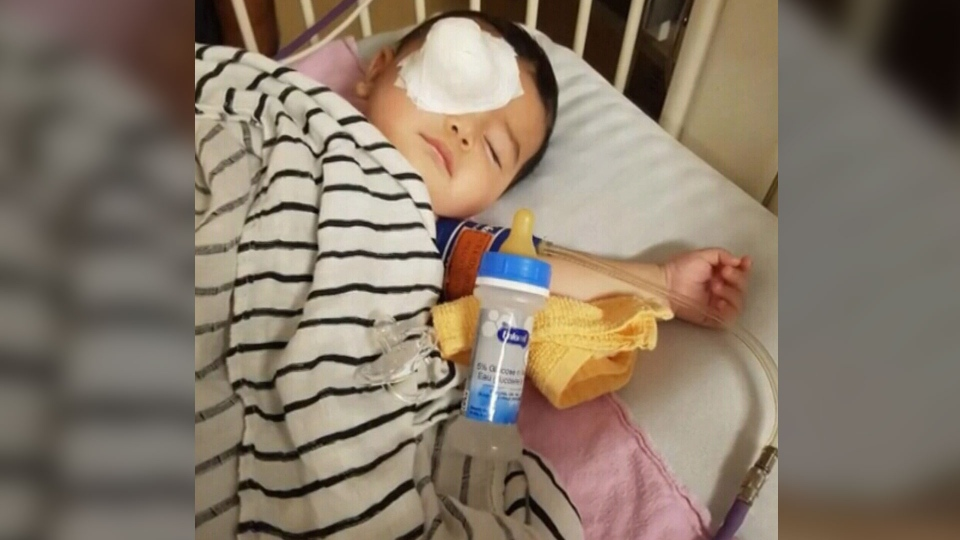 The family of an Ontario toddler is struggling financially after their son lost his right eye to cancer.