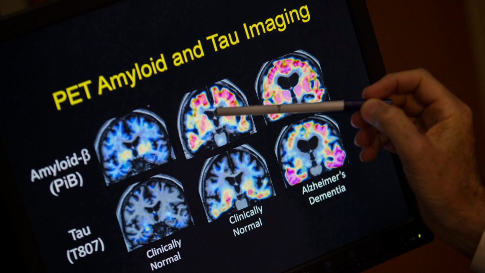 In this May 19, 2015, file photo, R. Scott Turner, Professor of Neurology and Director of the Memory Disorder Center at Georgetown University Hospital, points to PET scan results that are part of a study on Alzheimer's disease at Georgetown University Hospital in Washington. (AP Photo/Evan Vucci, File)