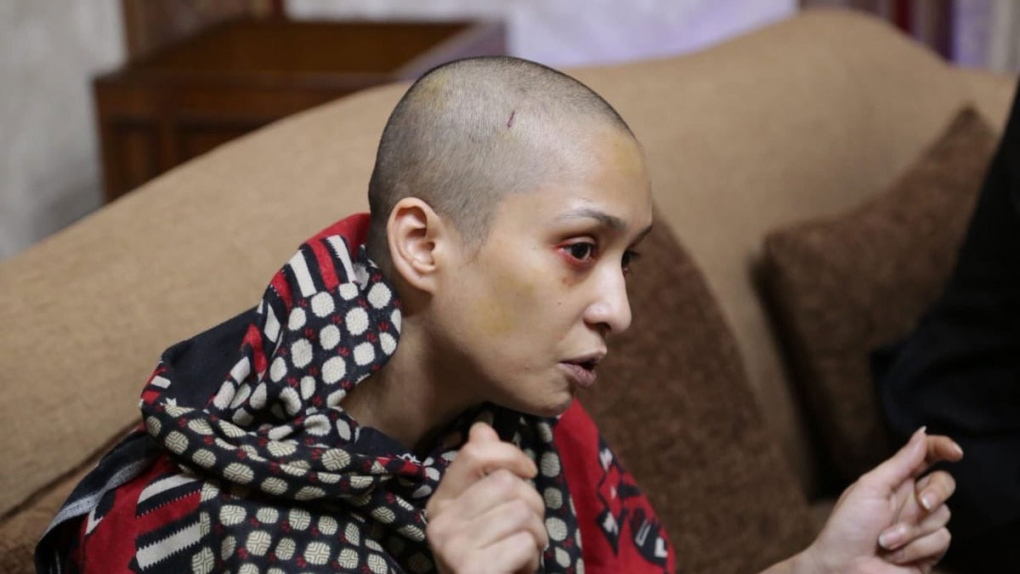 Pakistani Woman Says Husband Beat Her Shaved Her Head After She