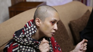 Asma Aziz of Lahore, Pakistan says her husband stripped and beat her and shaved her head after she refused to dance for him and his friends.