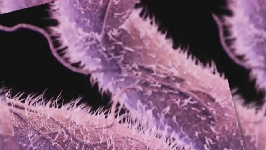 Officials investigate Salmonella outbreak