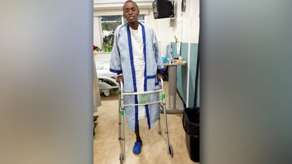 An Edmonton teen says he lost his leg in a car bombing in Somalia while visiting family.