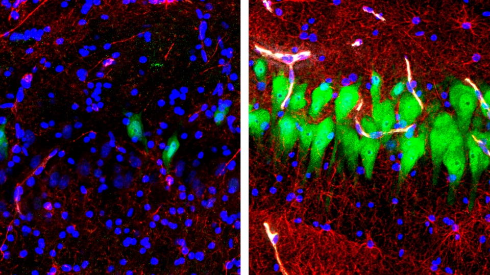 This combination of images provided by the Yale School of Medicine in April 2019 shows stained microscope photos of neurons, green; astrocytes, red, and cell nuclei, blue, from a pig brain left untreated for 10 hours after death, left, and another with a specially designed blood substitute pumped through it. (Stefano G. Daniele, Zvonimir Vrselja/Sestan Laboratory/Yale School of Medicine)