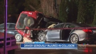 Acura driver seroiusly injured in crash
