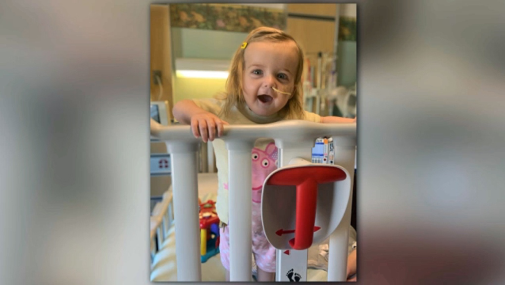 Alberta toddler thriving months after undergoing rare surgery