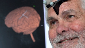 A team from Northwestern University in Illinois conducted the small pilot study on 15 seniors where they were given 30 minutes of transcranial magnetic stimulation. A day after the treatment, the seniors  demonstrated near-normal memory scores when compared with healthy 25-year-old subjects.