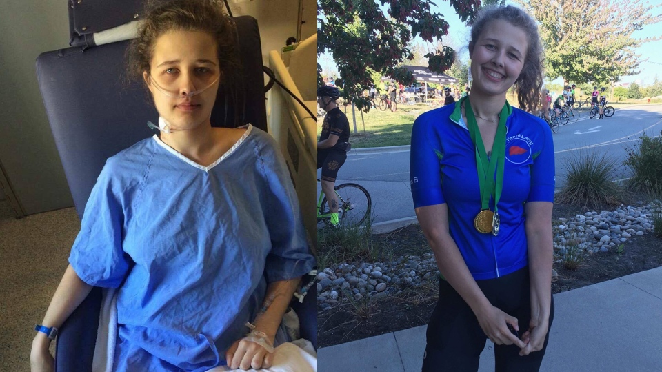Natalie Williams, 21, is shown before her liver transplant (left) and after her transplant (right) at the Canadian Transplant Games, where she won three gold medals. (Submitted)