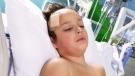 Chunk of ice falls, hitting boy on head