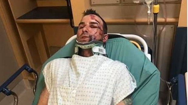 Winnipeg man seriously hurt while cycling looking for answers