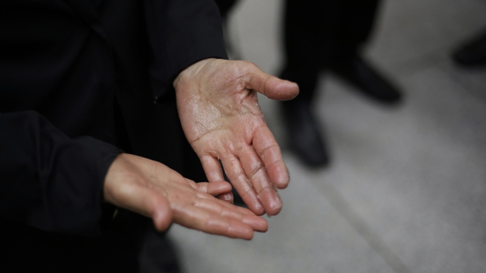 An Extinction Rebellion climate change protester shows her hands in the City of London, on April 25, 2019. (Matt Dunham / AP)