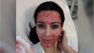 Kim Kardashian posted a photo of herself receiving a vampire facial in March 2013. (Kim Kardashian / Instagram)