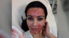 Kim Kardashian posted a photo of herself receiving a vampire facial in March 2013. (Kim Kardashian / Instagram)