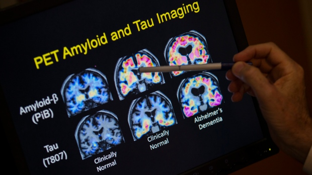 New type of dementia identified