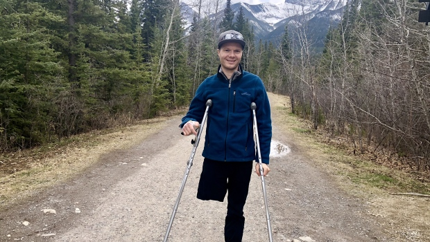 Mountain Biker Returns Home To Canmore After Losing Leg To