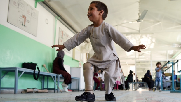 Video of joyful Afghan boy dancing on new prosthetic leg goes viral
