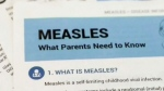 Warning issued about possible measles exposure