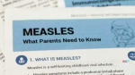Another suspected case of measles in N.B.