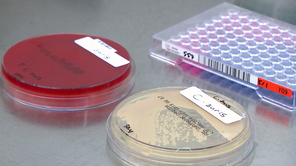 Samples of the C. auris fungus are seen in a laboratory.