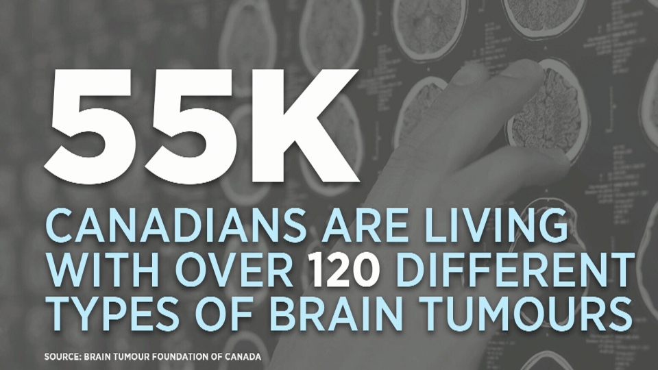 According to the Brain Tumour Foundation of Canada, around 55,000 Canadians are living with more than 120 different types of brain tumour.