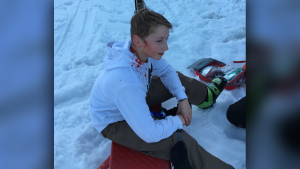 A 13-year-old skier was seriously injured after being struck by a man's ski pole on Grouse Mountain on March 30, 2019.