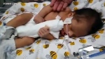 Condition of baby cut from mom's womb 'improved'