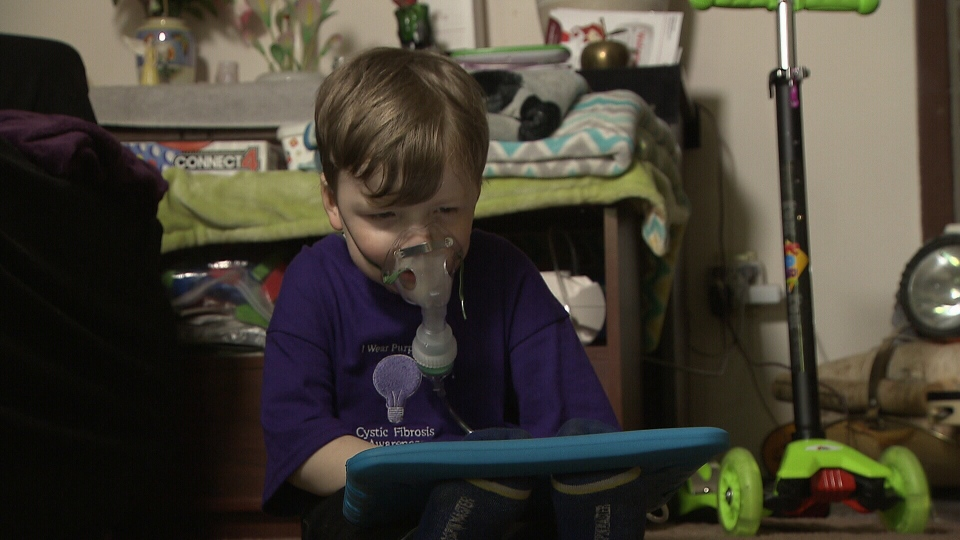 Four-year-old Liam struggles to breath on a daily basis due to Cystic Fibrosis.