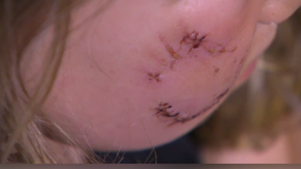 A girl after being bit by a dog