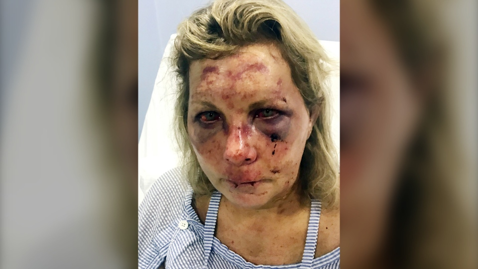 In this undated photo made available by Chris Daley, shows his wife Tammy Lawrence-Daley after an attack at a resort in Punta Cana, Dominican Republic in January 2019.  (Chris Daley via AP)
