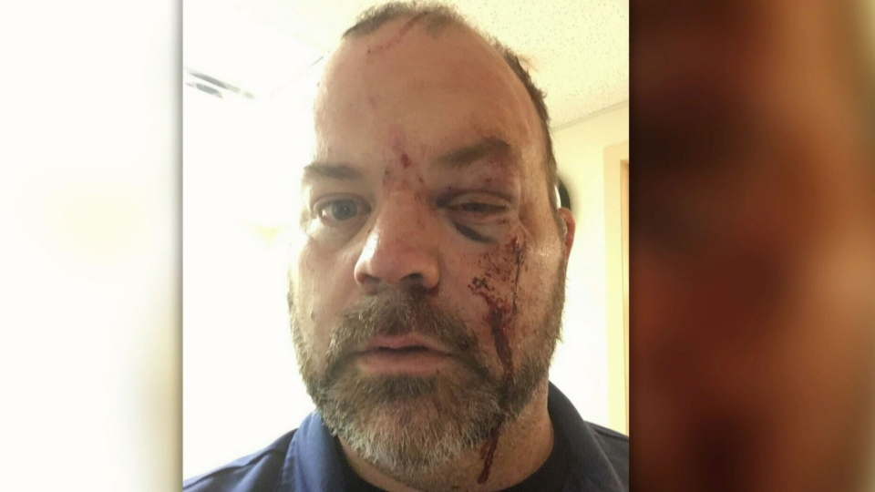 *Graphic* Gord Brown suffers facial injuries after an alleged attack on Fri, June 14, 2019 in Orillia.(CTV News Barrie)