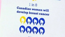 Regional Breast Screening Challenge