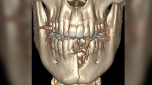 A 17-year-old boy in Utah was treated for a circular puncture wound to the chin, extensive deep cuts in his mouth, bone damage to his lower jaw and dislodged lower teeth caused by an exploding e-cigarette. (The New England Journal of Medicine)
