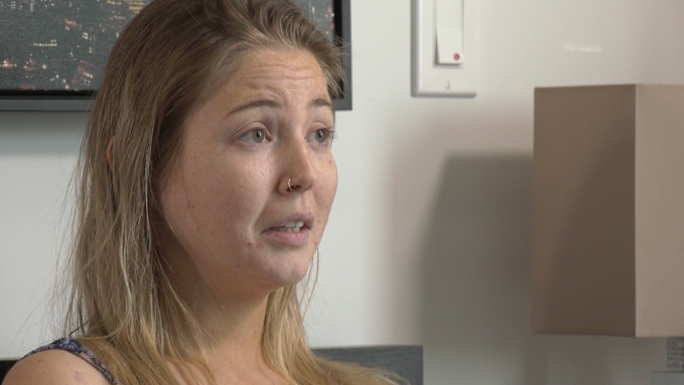 Robyn-Lee Jansen said she was left with first and second degree burns after a photo shoot went wrong in East Vancouver.