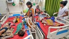 India encephalitis