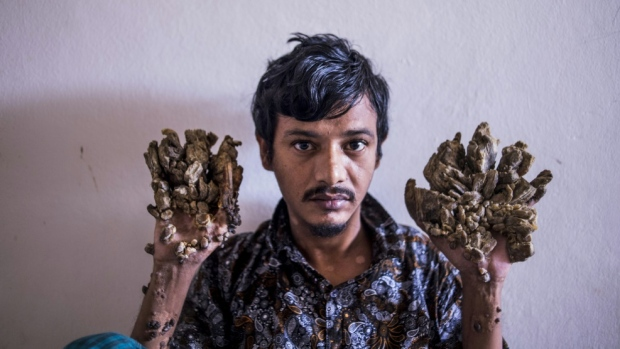 Abul Bajandar has had 25 operations since 2016 to remove growths from his hands and feet caused by a rare syndrome. (AFP)