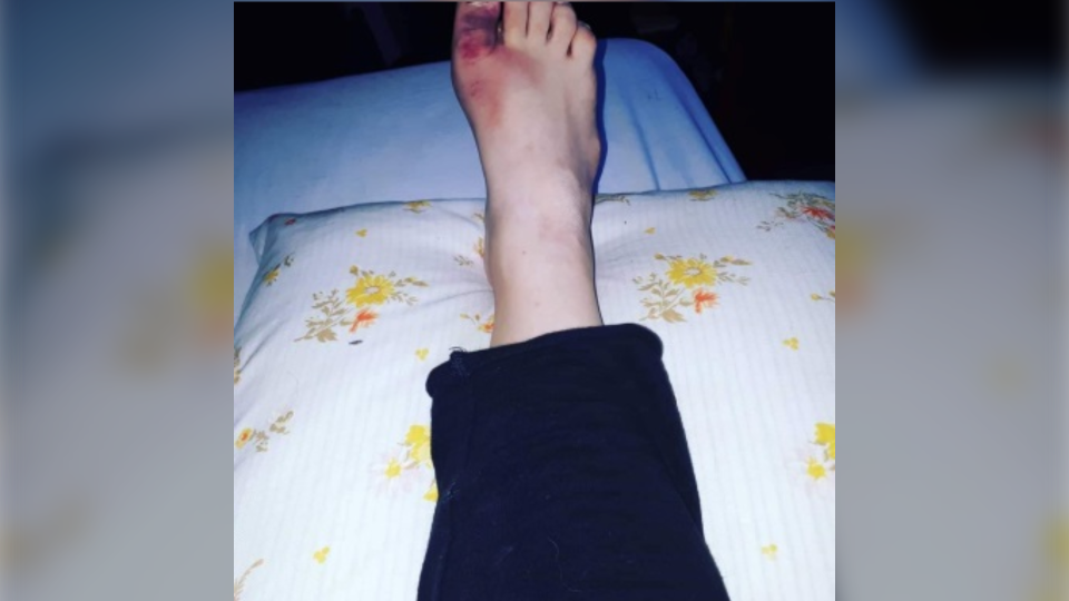 Samantha Rideout took a photo of her foot on the day she slipped and fell down the stairs in her home.