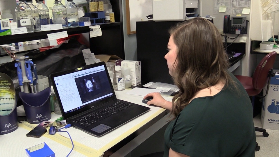 Rebecca Sullivan, a PhD candidate at the Lawson Health Research Institute, examines heart tissue in London, Ont. on Tuesday, July 9, 2019. (Celine Moreau / CTV London)