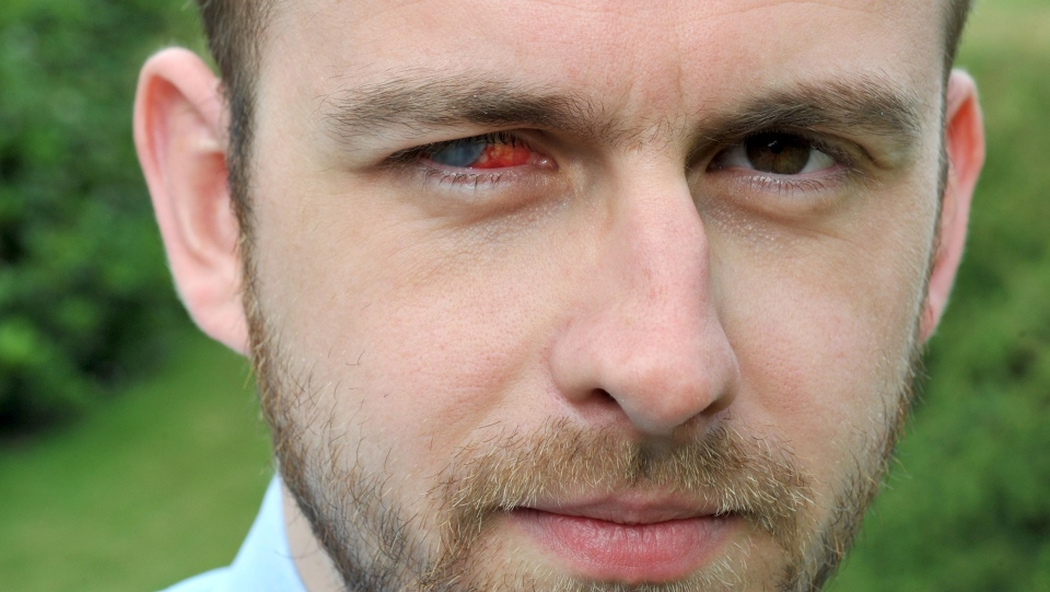 Nick Humphreys, 29, who works for the Shropshire Star newspaper in England, has suffered 18 months of misery after the parasite found in a droplet of water ruined his eyesight. (Express & Star)