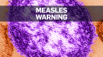 New case of measles in Quebec