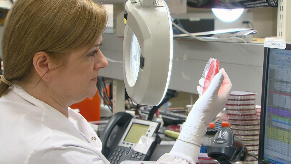 Syphilis cases in Alberta hit highest number since 1940s