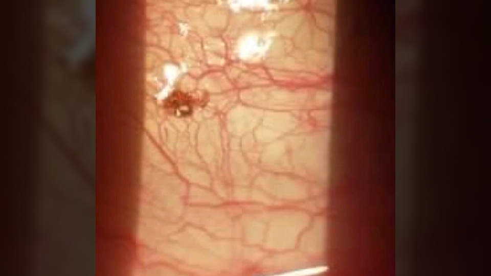 A tick was discovered in a Kentucky man's eyeball