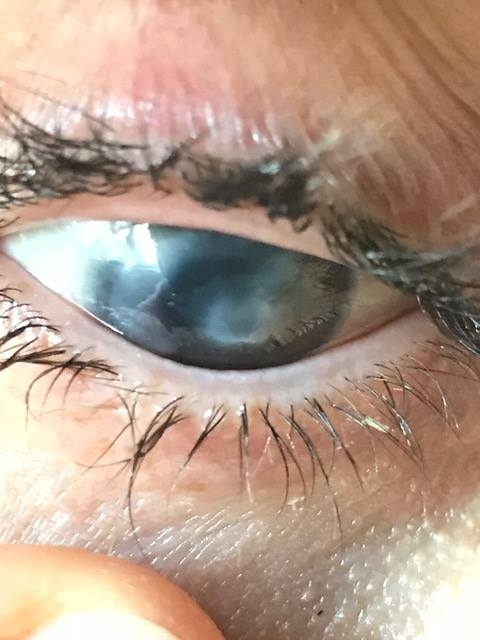 Jon Volpe, from Tottenham, Ont., has endured excruciating pain caused by acanthmoeba keratitis (AK), a rare disease in which amoebae invade the cornea of the eye. (Jon Volpe)