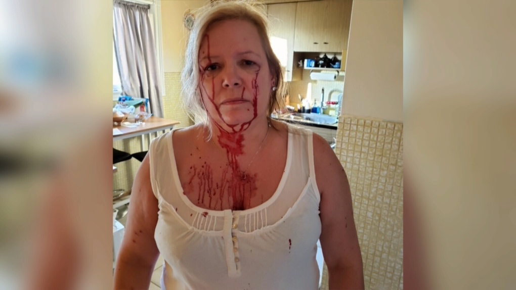 Woman bloodied in cat attack seeks tougher bylaws