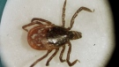 This March 2002 file photo shows a deer tick under a microscope in the entomology lab at the University of Rhode Island in South Kingstown, R.I. Lyme disease has settled so deeply into parts of Canada many public health units now just assume if you get bitten by a tick, you should be treated for lyme disease. (THE CANADIAN PRESS/AP/Victoria Arocho)