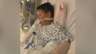 Young boy loses hand in fireworks prank