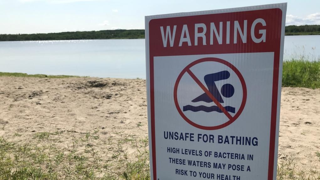 Swimming advisory posted on Porcupine Lake