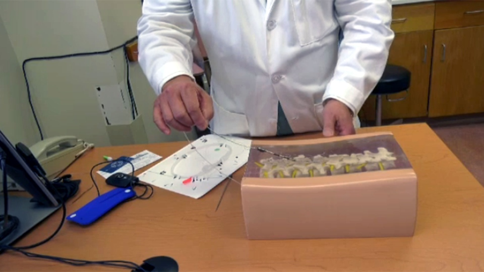Dr. Aaron Hong is seen holding part of a spinal cord stimulator. (CTV News Toronto)