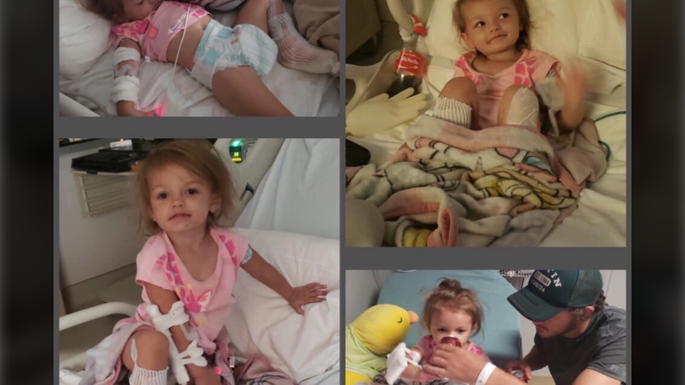 Kaylee,2, is being treated for her injuries at a pediatric burn unit in Austell, Ga. (GoFundMe)