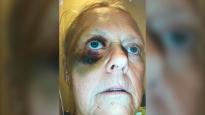 Sandra Cartledge, 65, is left with approximately $100,000 in U.S. medical bills after a trip gone wrong. (Supplied)