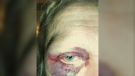 Sudbury woman stuck with medical bills after trip