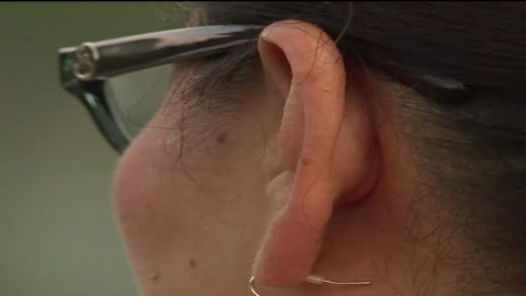 Susie Torres said she thought there was just water in her ear when she visited a medical clinic.